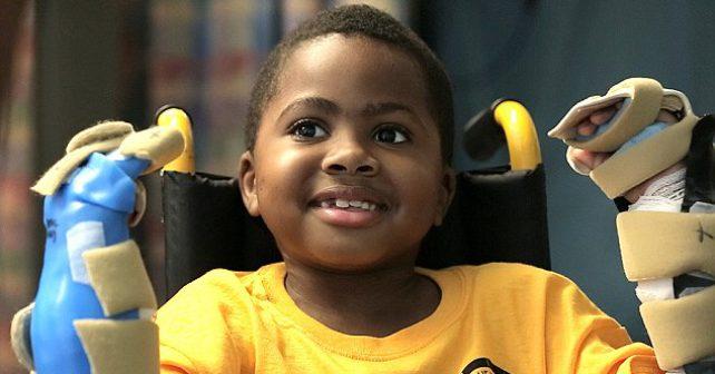 Osmiletému chlapci úspěšně transplantovali obě ruce
