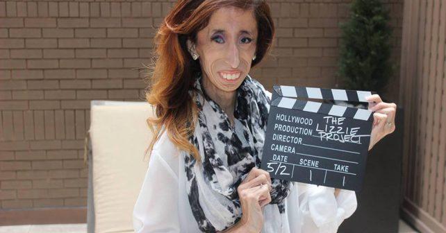 """""""Nejošklivější žena světa"""" má vlastní film a snaží se motivovat lidi s podobným osudem"""