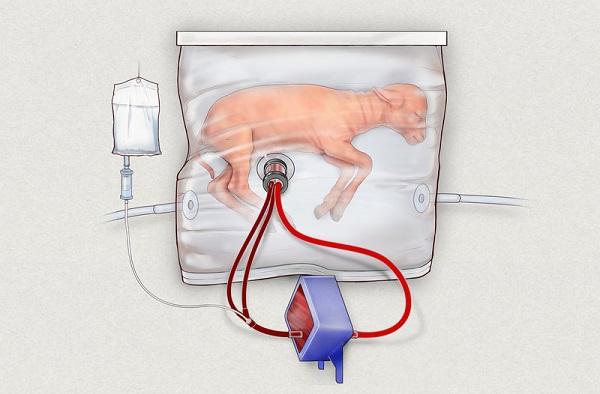 Umělá děloha by mohla pomoci předčasně narozeným dětem