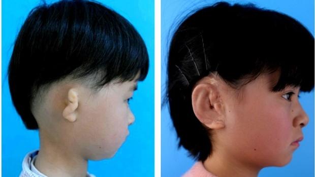 První chlapec na světě má nové ucho vypěstované z vlastních buněk