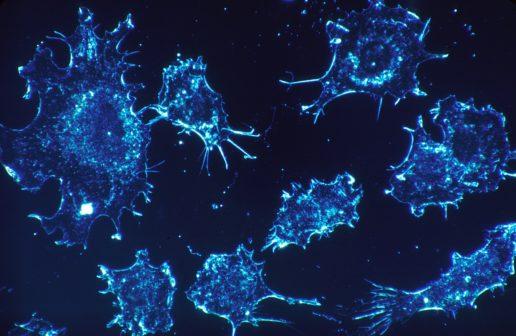 Vědci odhalili důležitost dýchání rakovinných buněk. Jeho absence může zastavit růst nádoru